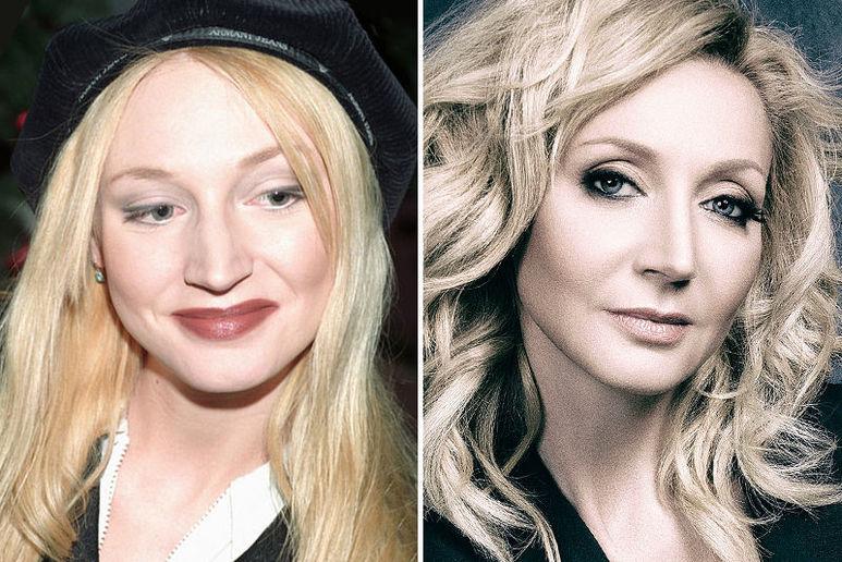 Кристина Орбакайтедо и после ринопластики